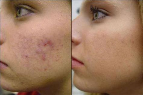 Post Inflammatory Hyperpigmentation – Pictures, Treatment