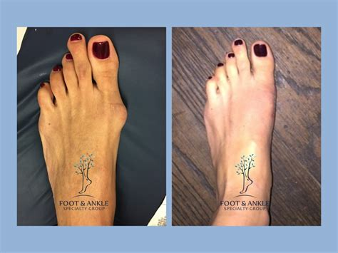 Bunion Surgery / Before and After - Foot & Ankle Specialty