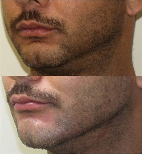 Before/after chin and jaw augmentation with filler (non