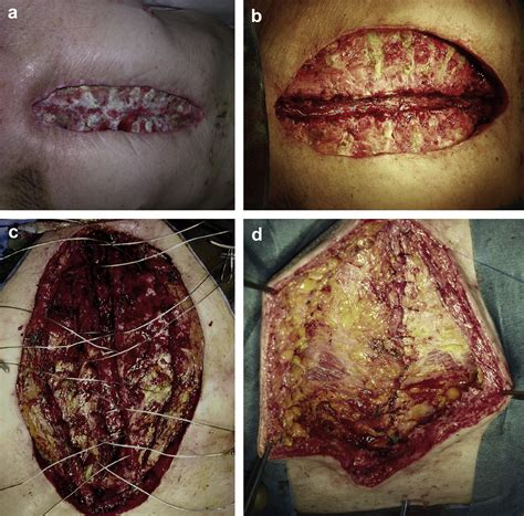 Surgical debridement, vacuum therapy and pectoralis plasty