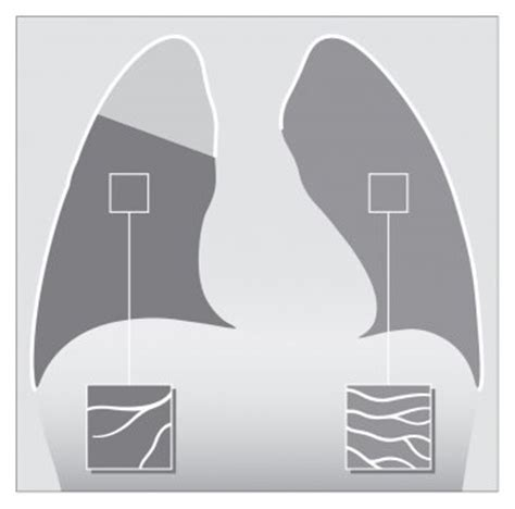 The Red Dot Chest X-ray Course - for Radiographers