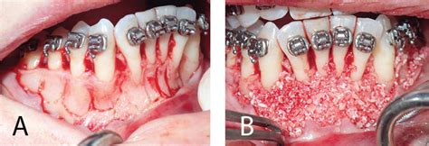 Accelerated Orthodontic Tooth Movement - Decisions in